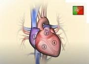 O problema da insuficiência cardíaca