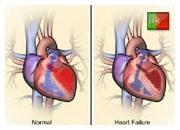 De que forma o coração e o corpo compensam a insuficiência cardíaca
