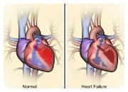 Hur hjärtat och kroppen kompenserar vid hjärtsvikt