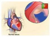 De que forma válvulas cardíacas anormais podem provocar insuficiência cardíaca