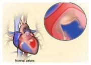 Hur onormala hjärtklaffar kan orsaka hjärtsvikt