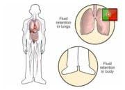 De que forma os diuréticos ajudam na insuficiência cardíaca