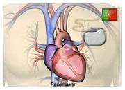 De que forma os dispositivos médicos ajudam na insuficiência cardíaca