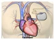 Hur medicinska apparater fungerar vid hjärtsvikt